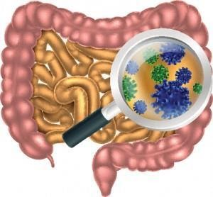 Gut infections including H. Pylori, Yeast Overgrowth, Parasites, Intestinal Viruses, and other Bacteria overgrowths strongly contribute to a leaky gut.